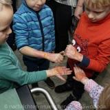 Tag des brandverletzten Kindes - Kinderklinik Schwabing 0220