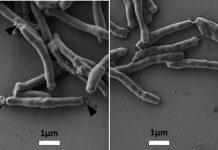 Tuberkulose: Klinische Erprobung eines neu entwickelten Medikaments
