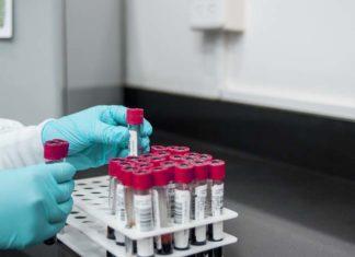 Tropeninstitut des LMU Klinikums startet klinische Studie zur Testung des neuen CureVac Impfstoffes gegen COVID-19